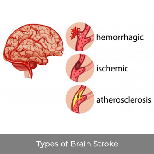 What is Brain Stroke and what are it's symptoms?