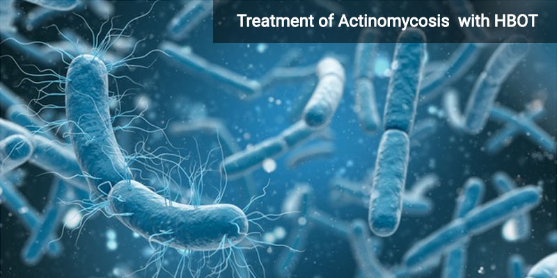 Actinomycosis – Causes, Symptoms and Treatment with HBOT